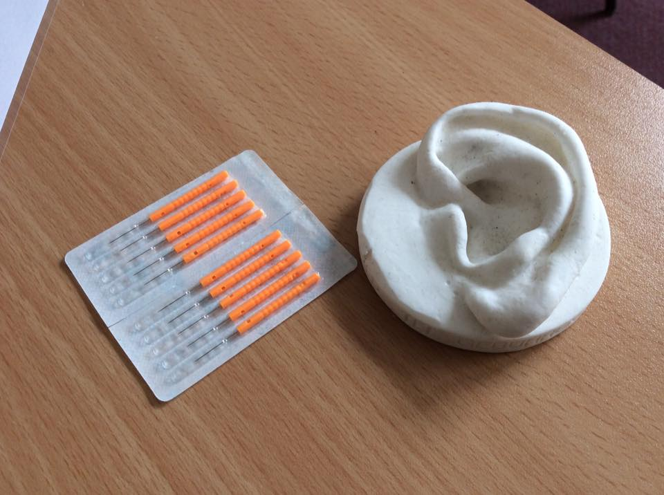 Ear Acupuncture Needles